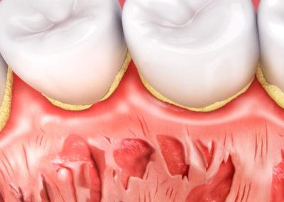 Oral B : Hygeia